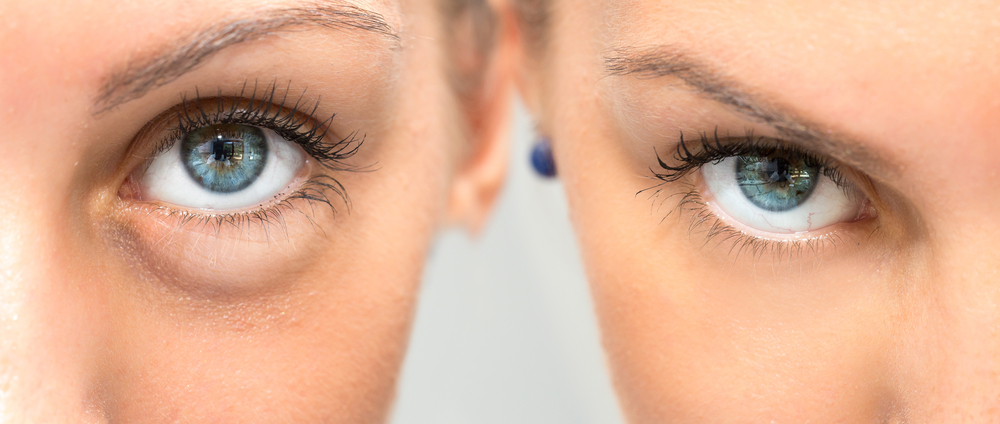before and after dermal fillers for eye bags