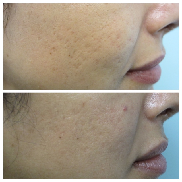 acne treatment before and after