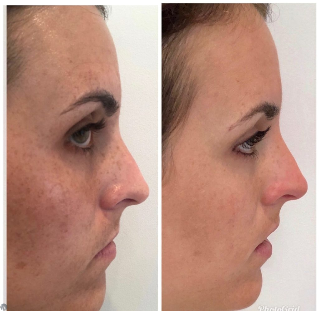 brown spots & birthmarks before and after