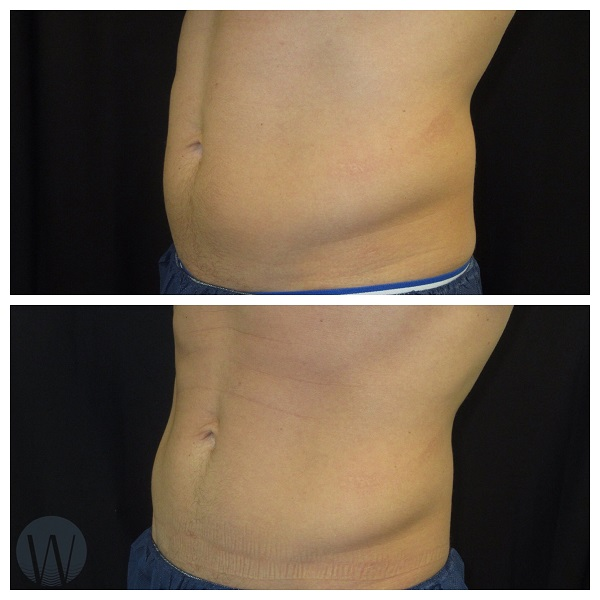 body treatments before and after