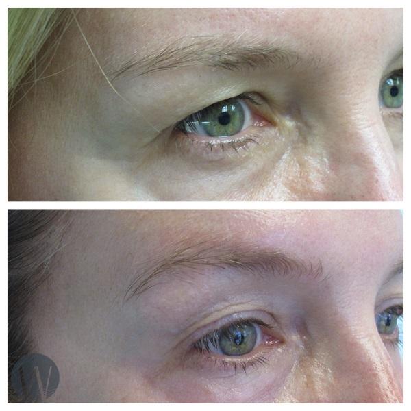 eye rejuvenation before and after