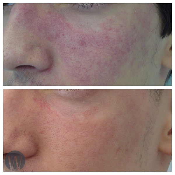 facial treatments before and after