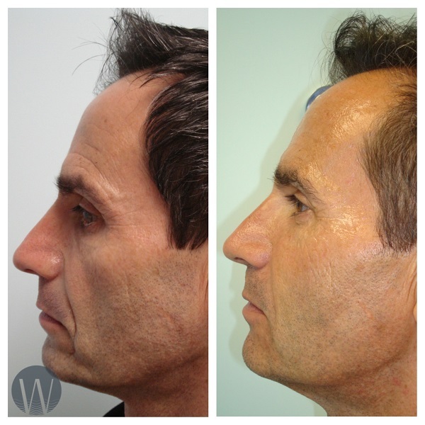 non-surgical facelift before and after