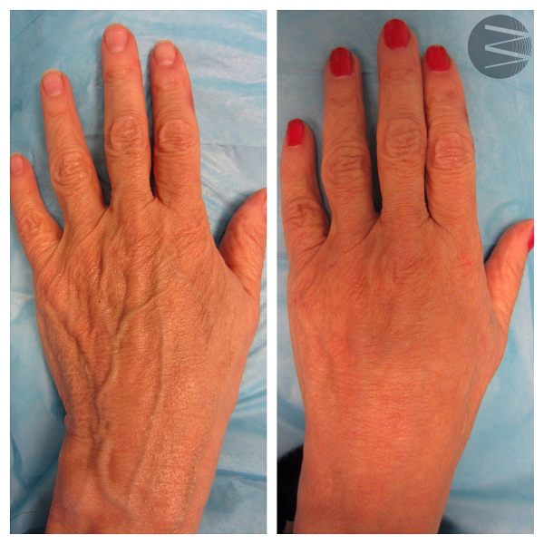 hand rejuvenation before and after