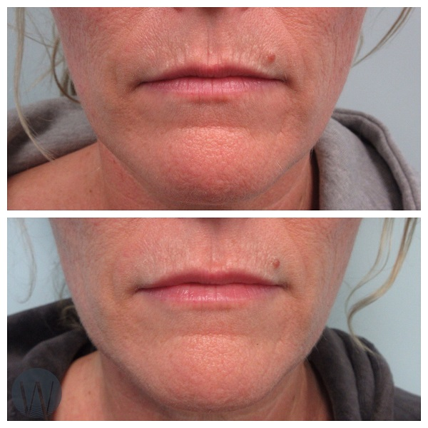 lip rejuvenation before and after