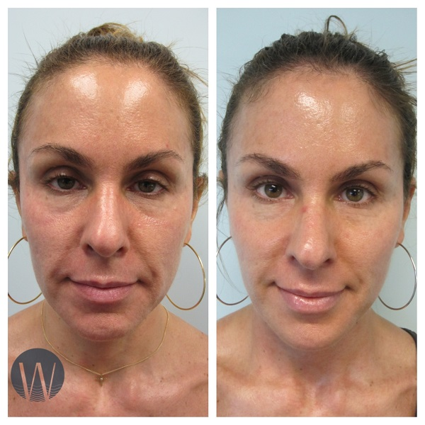 facelift in a syringe before and after
