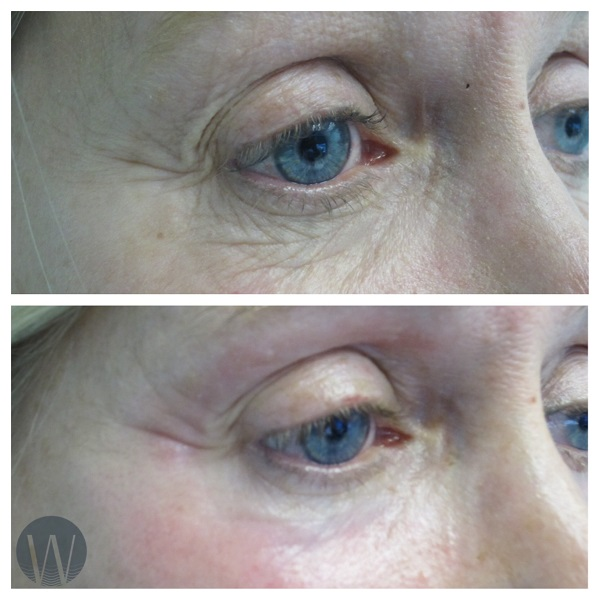 laser skin resurfacing before and after