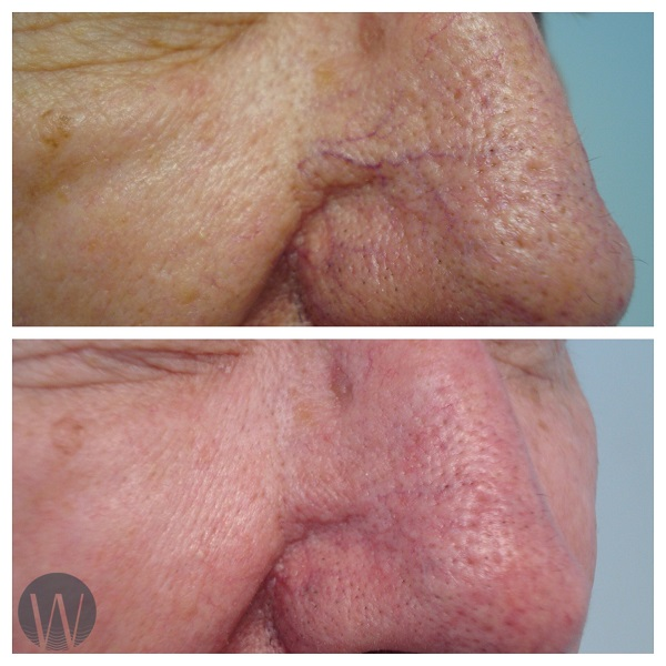 rosacea treatment before and after