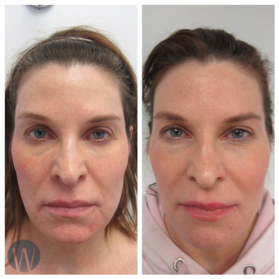 face contouring before and after
