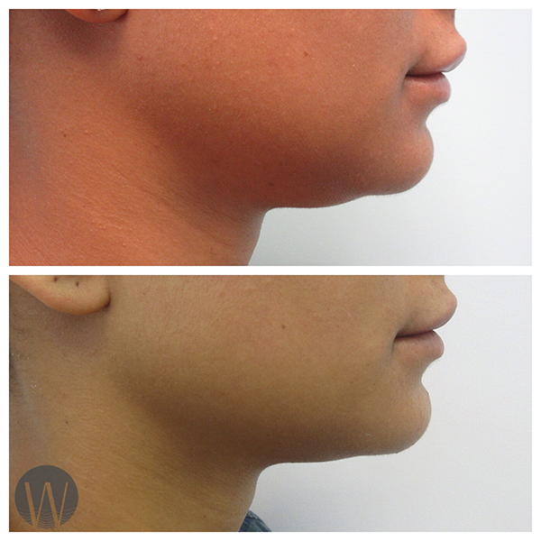 neck contouring before and after