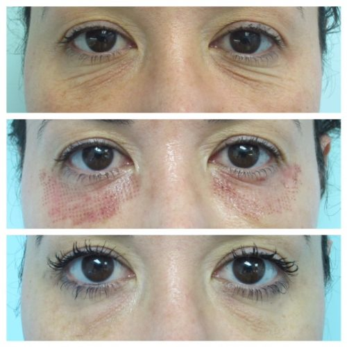 AcuPulse fine wrinkle treatment before and after