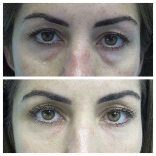Restylane-under-eyes-1024x1024
